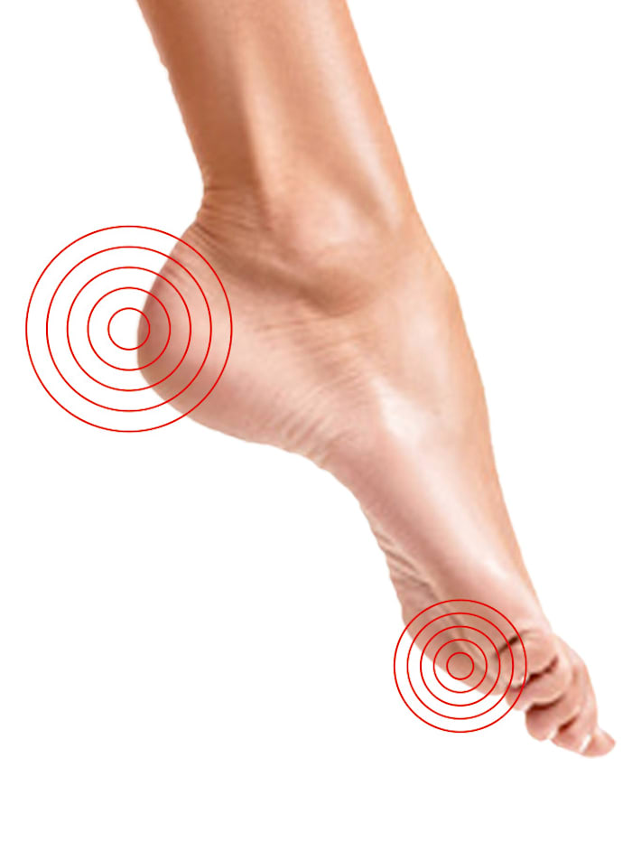 Anti-eeltlotion voor zachte voeten