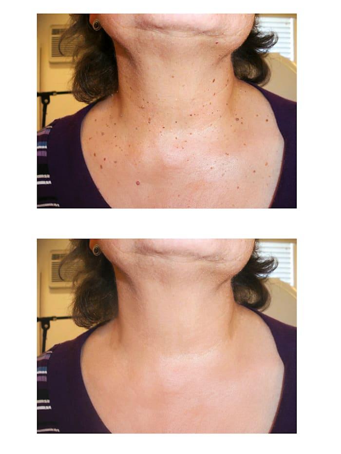 Thuja-Skincare-Fluid - gegen Stiel- oder Alterswarzen